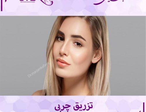 تزریق چربی در تهران